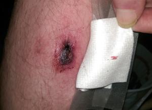 MRSA wound